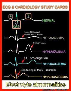 ECG and Cardiology study cards Nursing School Tips, Nursing Notes, Nursing Tips, Medical School, Nursing Programs, Study Nursing, Nursing Schools, Rn Programs, Pa School