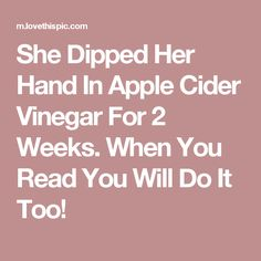 She Dipped Her Hand In Apple Cider Vinegar For 2 Weeks. When You Read You Will Do It Too!