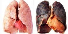 Não é segredo para ninguém que o cigarro é muito prejudicial para o nosso organismo.Difícil mesmo é convencer um fumante a largar o vício...