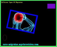 Different Types Of Migraines 103043 - Cure Migraine