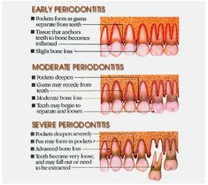 Different stages in the #PERIODONTICS gum problems