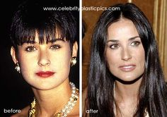 Demi Moore Plastic Surgery Before And After Photo