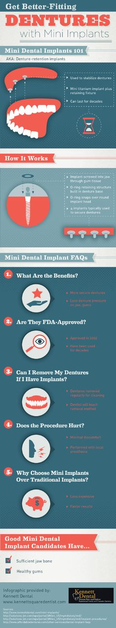 A dentist screws a mini dental implant into the jaw through the gum tissue to provide a secure base for dentures. This provides less pressure on the jaw and the gums. Check out this infographic from a dentist in Pennsylvania to learn more.
