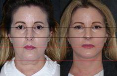 Změna rozměrů obličeje po face liftingu obličeeje - foto před a po liftingu