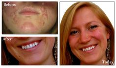 Paleo for Women | Everything you need to know about acne in 3000 words