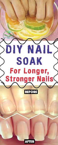 This 3-Ingredient DIY Nail Soak Miraculously Rejuvenates your Nails and Boosts their Growth! #nails #strong #women
