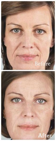 Sculptra Aesthetic® is a dermal filler that works to correct shallow to deep facial wrinkles and folds by replacing lost collagen, which can help provide a refined, more youthful looking appearance. Unlike other similar treatments, Sculptra works subtly over time rather than immediately. Sculptra typically requires three treatments over a few months, rejuvenating the skin noticeably over this time. http://derm90210.com/Sculptra