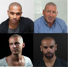 Scalp micro pigmentation is fast becoming both the great scientific treatment and the coolest way to deal with hair loss in the 21st century. #Skalp #SMP #hairloss #bald #baldness
