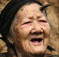Zhang Ruifang, a old woman, from China's Henan Province, has a strange horn coming out of the left side of her forehead. Her bizarre horn started growing last year, and now measures between cm in length. Mode Bizarre, Bizarre Facts, Bizarre Photos, Creepy Photos, Human Oddities, Weird News, Crazy People, Strange People, Strange Things