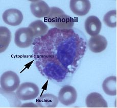What is an Eosinophil?