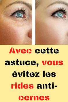 Huile Anti Ride, Mascara, Rides Front, Health Fitness, Skin Care, Solution, Wrinkle Remover, Face Beauty, Health And Beauty