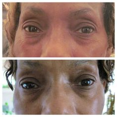 NeriumAD Fix skin discoloration - hyperpigmentation (red / brown spots); works on all skin types $80