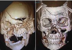 An incredible image of a woman's face that has been reconstructed after it was destroyed in a car crash has surfaced online. The image shows two skulls side-by-side in a