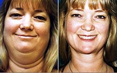Facial Yoga Workout And Systems For Attaining Facelifts Without Surgery: Face Tightening Systems: Yoga Facial Exercises To Get Rid Of Jowl Sag And Chunky Cheeks Neck Liposuction, Cheek Fat, Yoga Facial, Face Facial, Reduce Double Chin, Face Tightening, Face Exercises, Jowl Exercises, Aerobics Workout