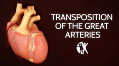 Transposition of the great arteries is a rare congenital heart defect in which the two main arteries, the aorta and the pulmonary artery that carry out. Cardiac Nursing, Neonatal Nursing, Interventional Radiology, Chd Awareness, Congenital Heart Defect, Respiratory Therapy, Physician Assistant, Nursing Notes, Hearts