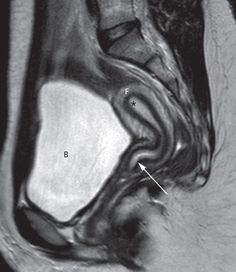 Anatomy - The zonal anatomy of the uterus is best demonstrated on T2-weighted images, with the endometrium having a high signal intensity, the adjacent inner myometrium (junctional zone) a low signal intensity, and the myometrium an intermediate signal intensity