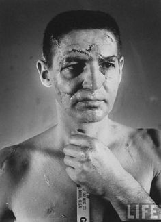 The face of legendary hockey goalie Terry Sawchuk before goalie masks were introduced 1966.