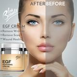 EGF Repairing BB Cream - for wrinkles, wounds, acne, dark spot and scars - FL oz (*) Skin Care Regimen, Skin Care Tips, Skin Tips, Beste Foundation, Bb Cream, Acne Cream, Cream Tea, Skin Cream, Acne Dark Spots