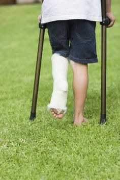 workouts for healing a broken leg