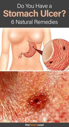 If you suffer from frequent heartburn and stomach pain, there is a chance that you might have a stomach ulcer- learn how to spot the signs and symptoms as well as some effective natural remedies. Food For Stomach Ulcers, Foods For Ulcers, Stomach Ulcers Symptoms, Stomach Ulcer Remedies, Ulcer Symptoms, Home Remedies For Heartburn, Foods For Stomach Ache, Stomach Burning Remedies, Ulcer Diet