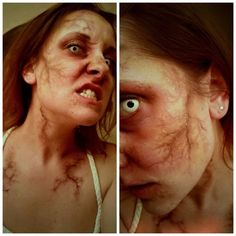 """Infected"" makeup look with veins and bruising by Amber Dawn of the Dead"