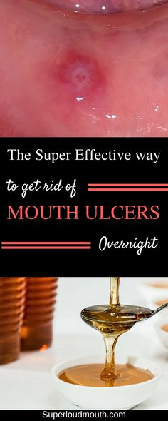 The effective remedy to cure and get rid of Mouth ulcers