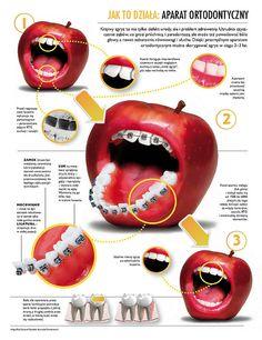 Poznaj #mity na temat #aparatów #ortodontycznych, przeczytaj artykuł przygotowany przez 3gDentist