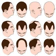 Receding Hairline Signs in Men
