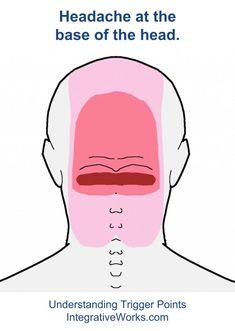 fi-semispinalis-capitis-bilateral