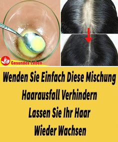 Thinning Hair Remedies, How To Make Money, Make Up, Long Bob, Hair Loss, Save Yourself, About Me Blog, Beauty, Trends