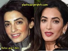 Amal Clooney Plastic Surgery – Care – Skin care , beauty ideas and skin care tips Plastic Surgery Before After, Celebs Without Makeup, Amal Clooney, George Clooney, Eyelash Lift, Under The Knife, Celebrity Plastic Surgery, Operation, Makeup Transformation
