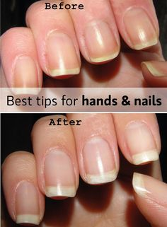 tips for beautiful hands and nails