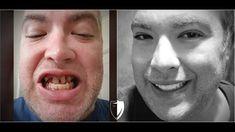 The official site of Brighter Image Lab.Order authentic Press On Veneers, BILVeneers, and IncrediBIL Veneers. Perfect Smile Teeth, Misaligned Teeth, Crooked Teeth, Dental Veneers, Smile Makeover, Smile Design, Smile Because, Bright, Cosmetics