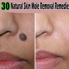Apple Cider Vinegar Mole Removal | Tips Park