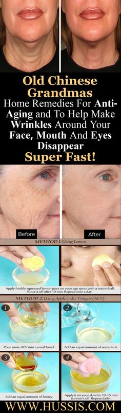 Old Grandmas 5 Home Remedies For Anti-Aging and To Help Make Wrinkles Around Your Face, Mouth And Eyes Disappear Super Fast! Old Chinese Grandmas 5 Home Health And Beauty Tips, Health And Wellness, Wellness Tips, Beauty Care, Beauty Skin, Home Remedies, Natural Remedies, Anti Aging, Les Rides