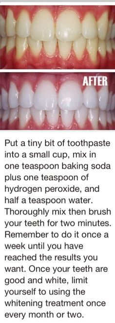 Whiten teeth, I must try this soon if not for the fact that Im tired of my mothers complaints
