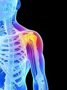 Schulterprobleme: Ursachen und Lösungsansätze