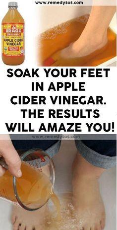 Soak Your Feet In Apple Cider Vinegar. The Results Will Amaze You! - Masking - Soak Your Feet In Apple Cider Vinegar. The Results Will Amaze You! Informations About Soak Your Feet - Apple Cider Vinegar Remedies, Apple Cider Vinegar Benefits, Apple Vinegar, Organic Apple Cider Vinegar, Apple Cider Vinegar Results, White Vinegar, Foot Remedies, Natural Cough Remedies, Herbal Remedies