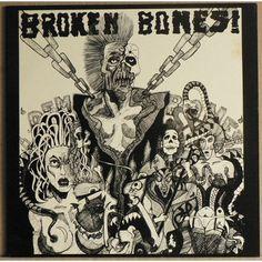 Broken Bones!  Dem Bones