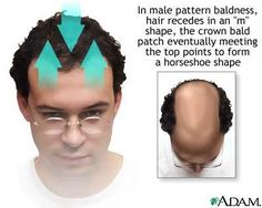 "Male Pattern Baldness - Male pattern hair loss begins at the temples and crown of the scalp. A person with a ""receeding hairline"" has this pattern of hair loss. Hair Loss Disease, Hair Loss Causes, Prevent Hair Loss, Natural Hair Growth Remedies, Hair Loss Remedies, Biotin Hair Growth, Hair Regrowth, Thick Hair, Hair"