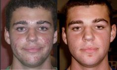 Rodan And Fields Before And After | Rodan + Fields UNBLEMISH Results www.lmccain.myrandf.com