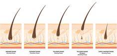Hair Growth Cycle And Its Impact On Laser Hair Removal