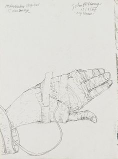 My Hand (from 'The Addenbrookes Hospital Series') − People and Society / Emotions − Subjects − Online Collection − Collection −  National Galleries of Scotland