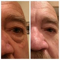 Where Can I Buy Jeunesse Instantly Ageless Eye Cream ? Come to Our Official Website and You Could Buy Best Jeunesse Instantly Ageless Anti Aging Eye Cream, Latina, Botox Alternative, Under Eye Bags, Tired Eyes, How To Line Lips, How To Look Handsome, Puffy Eyes, Stretch Marks, Just Amazing