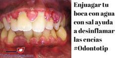 Enjuagar tu boca con agua con sal ayuda a eliminar las bacterias y desinflamar las encías #Odontotip