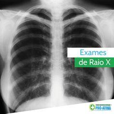Também fazemos exames de raio x, você sabia? Precisou, é só passar aqui na Pró-Ativa para tirar a sua chapa ;)  #VoceSabia #ProAtiva #SaudeOcupacional
