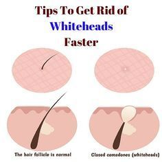 Want to get rid of these ugly white heads??? Follow these easy tips to get rid of whiteheads on the nose, chin and face faster.