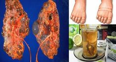 HERE ARE 4 DRINKS THAT WILL HELP YOU CLEANSE YOUR KIDNEYS AND FILTER YOUR BLOOD STREAM!