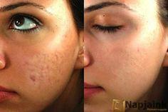 Otthoni orvosság, ami eltünteti a hegeket az arcodon | Napjaink