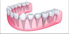 Dental Implants Clinic in Abu Dhabi - Looking for the best dental implants in Abu Dhabi? Here we provide the best dental implants. Smilerite is one of the best dental clinics in abu dhabi UAE Implants Dentaires, Best Dental Implants, Single Tooth Implant, Affordable Dental, Tooth Replacement, Dental Center, Dental Bridge, Dental Surgery, Sinus Surgery